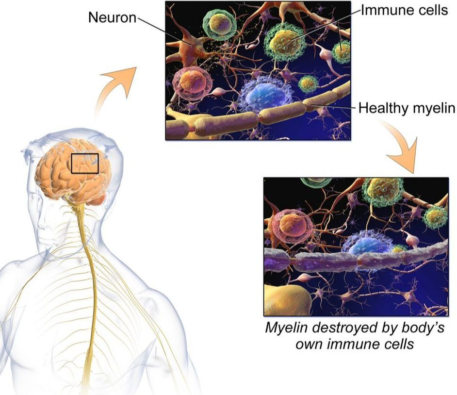 Multiple Sclerosis Cure