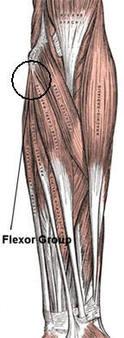Golfer's Elbow, Elbow Tendinosis, Medial Epicondylitis