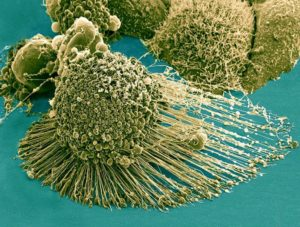 Fascia and Cancer