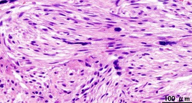 Fascia Scar Tissue