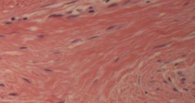 Scar Tissue MVA