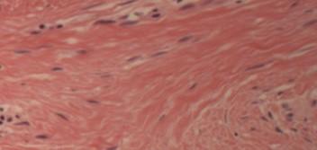 Scar Tissue Ligament
