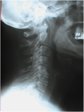 Neck X-Ray Car Crash
