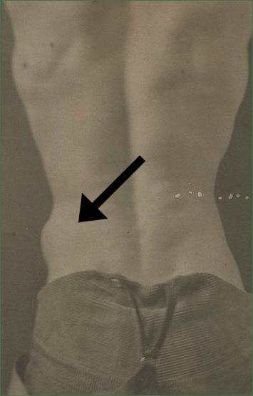 Injured Fascia
