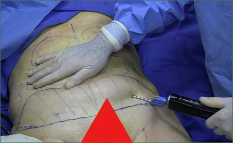 Liposuction Nightmare