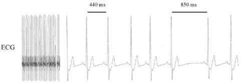 Autonomic Nervous System Heart Rate Variability