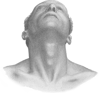 Automobile Accident Car Crash Chronic Neck Pain