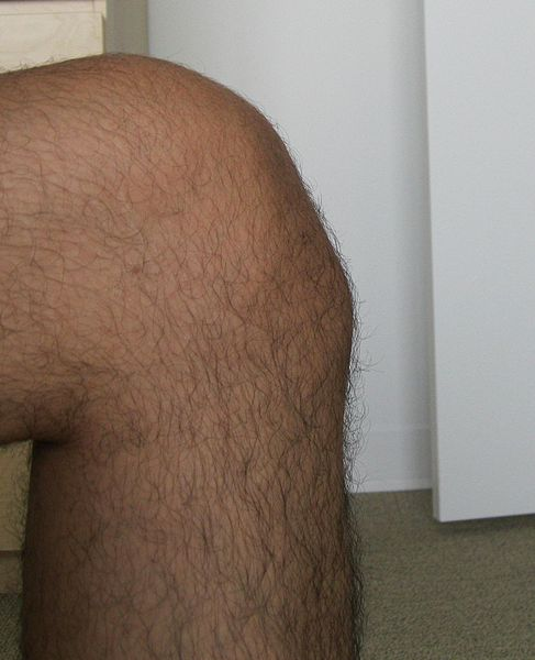 Osgood Schlatter Syndrome and Tibial Tubercle