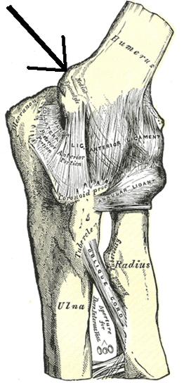 Medial Epicondylitis, Golfer's Elbow, Elbow Tendinosis