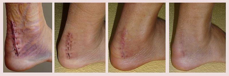 Scar Tissue Healing