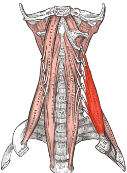 Thoracic Outlet Syndrome Scalene Muscles