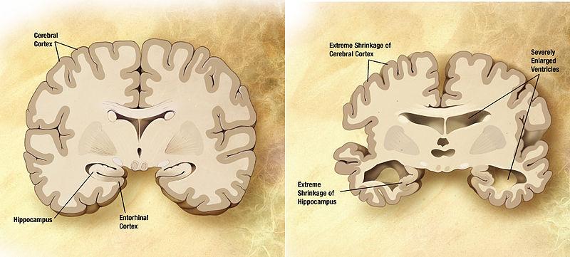 Alzheimer's Shrinkage