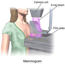Mammography Death
