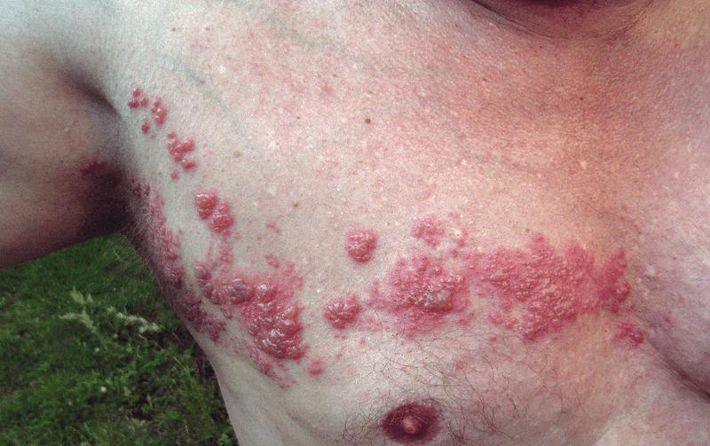 Shingles Dermatome