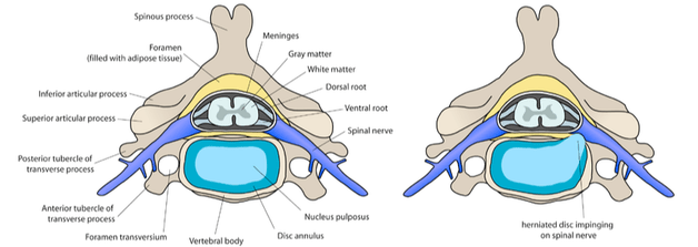 Spinal Disc Pain Antibiotic