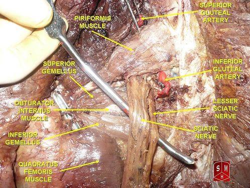 Piriformis Syndrome Sciatic Nerve