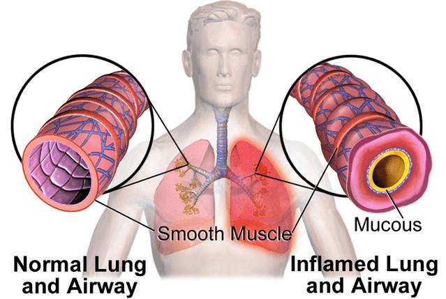 Asthma Autoimmune