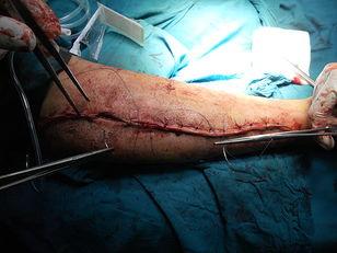 Scar Tissue Chronic Pain