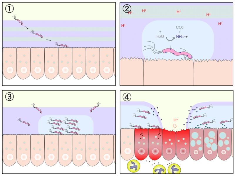 Hypochlorhydria