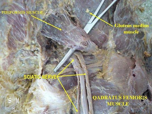 Piriformis Syndrome Sciatica