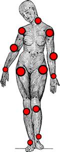 Systemic Tendinosis