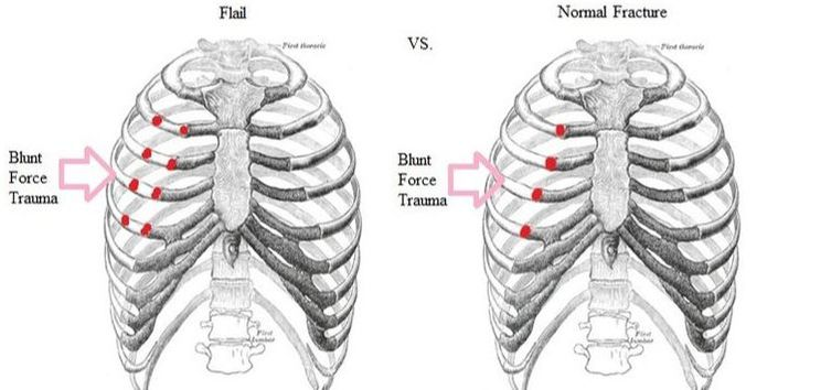 Chronic Rib Fractures