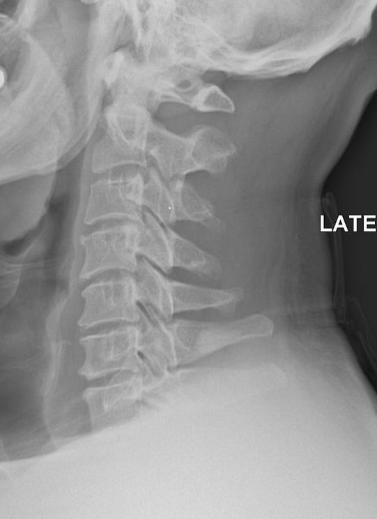 Neck Pain Solutions