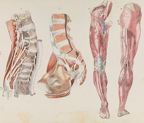 Tendinosis or Fascia