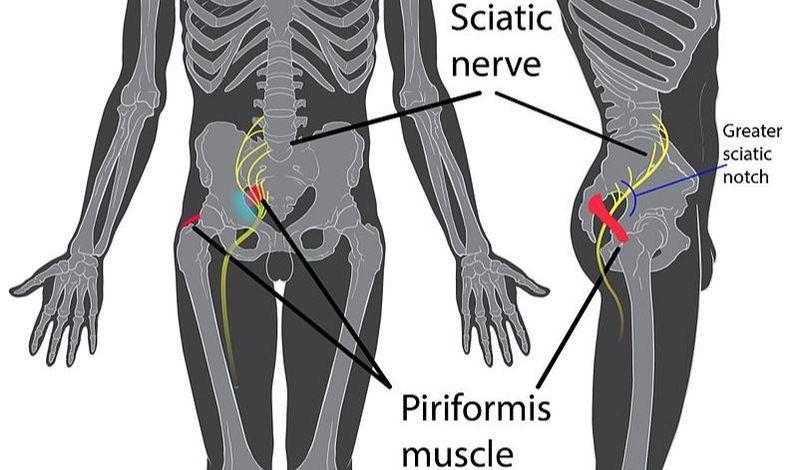 Piriformus Cure