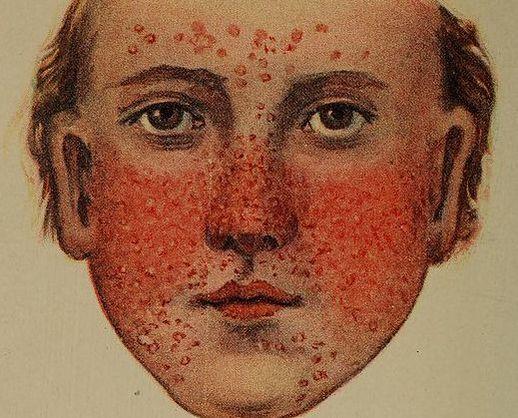 Natural Cure Rosacea