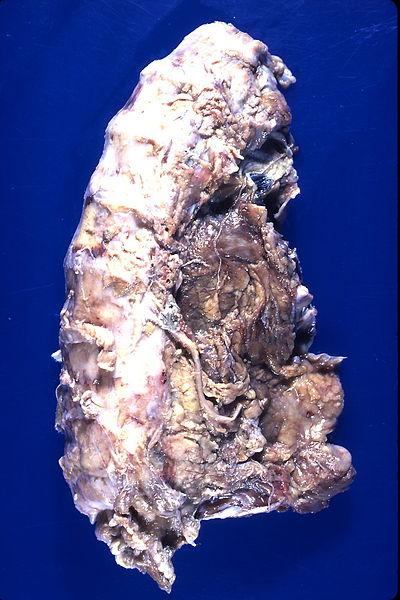 Inflamatory Fibrotic