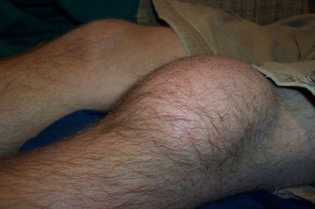 Bursitis of the knee