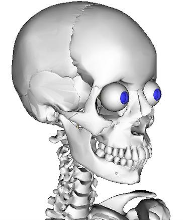 Chronic Neck Pain Trigger Point