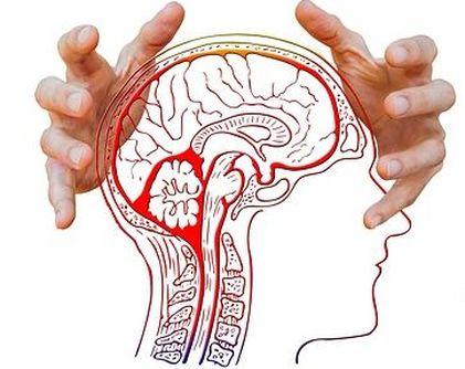 Migraine Headache Cures