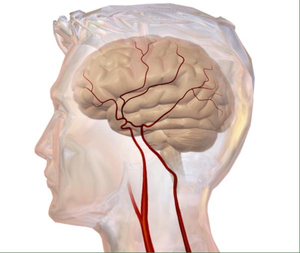 Whole Body Vibration Neurological