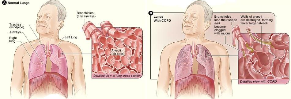 COPD Solutions