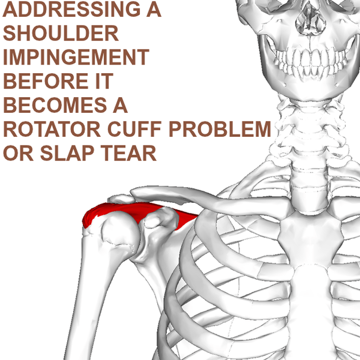 Shoulder Impingement Rotator Cuff Slap Tear