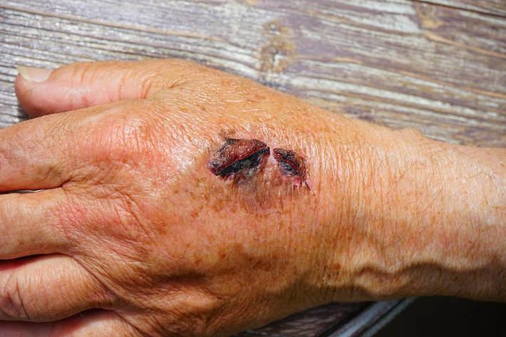 Inflammation Scar Tissue