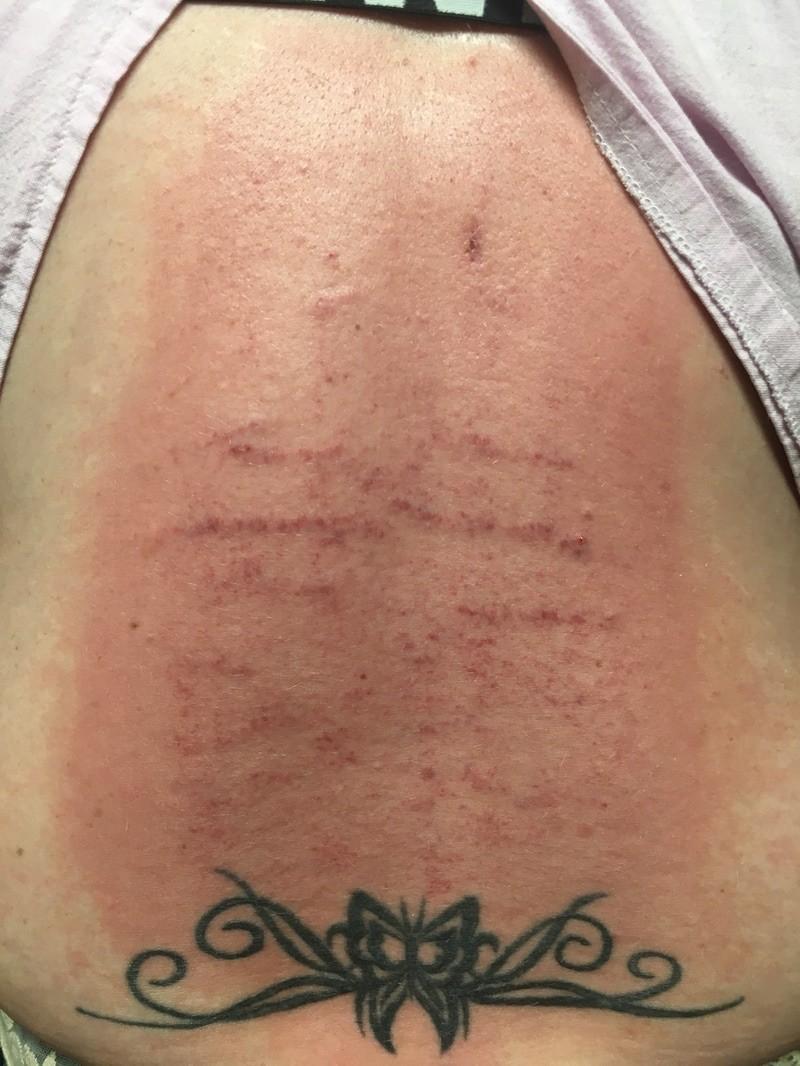 Stretch Scars