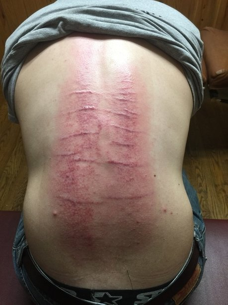 Hypertropic Scars
