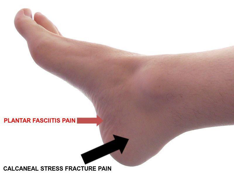 Stress Fracture Heel