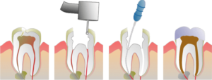 Root Canals are Potentially Toxic to Your Health