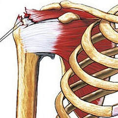 Shoulder Impingement Supraspinatus