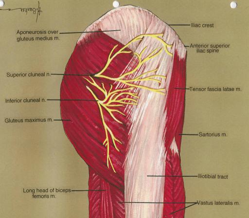 Cluneal Nerve Entrapment