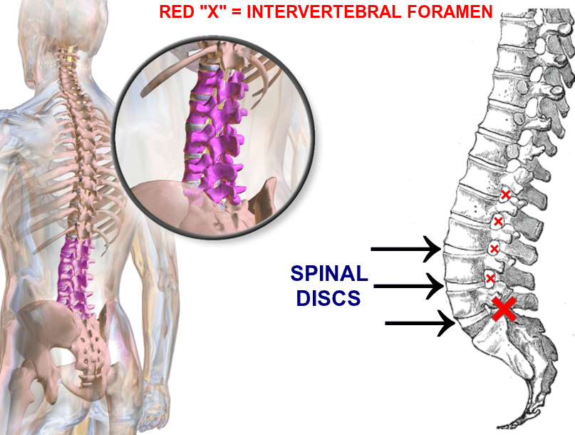 Spinal Disc Cure