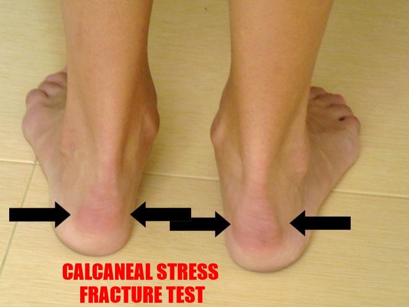 Calcaneal Stress Fracture
